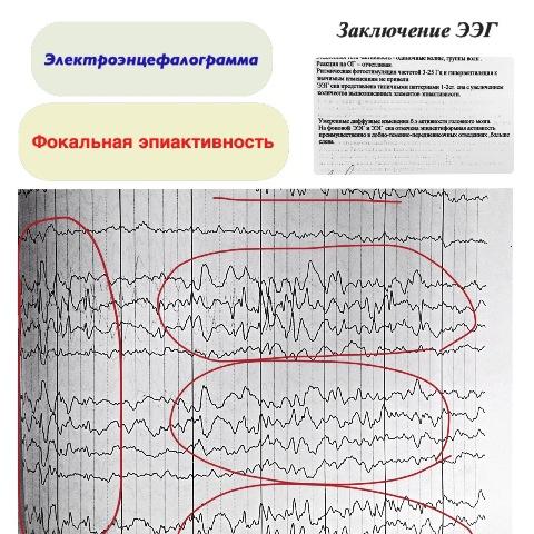 Диффузные эпилептиформные изменения