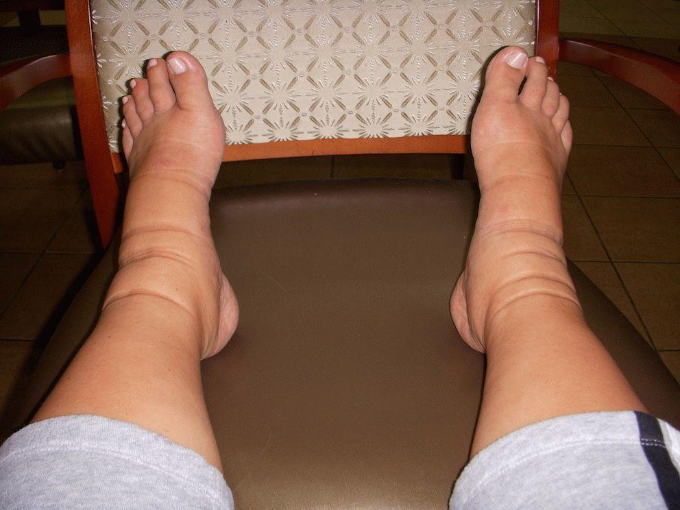 Тяжелый отек ног. Почему отекают икры ног