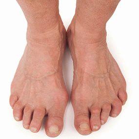 Боль в ноге при сидении