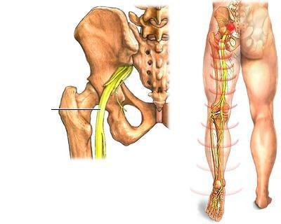 Эффективное лечение артроза тазобедренного сустава